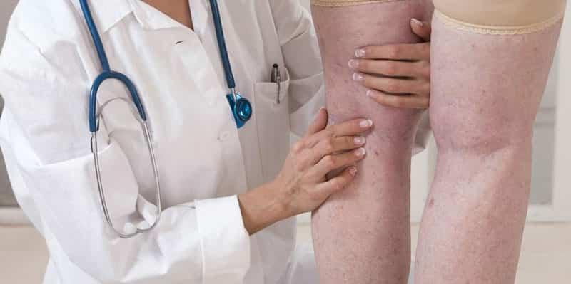 Angiologia cirurgia vascular